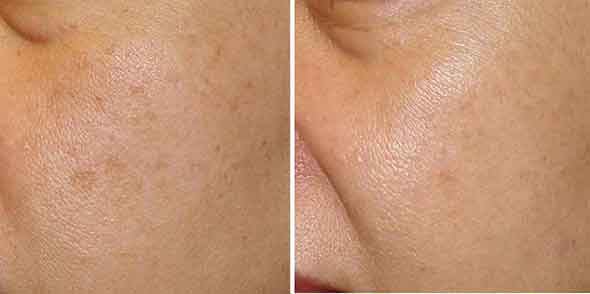 Bellair Laser Clinic: Before and After Pictures