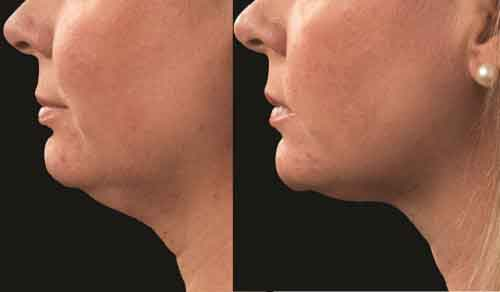 Bellair Laser Clinic Before Amp After Pictures