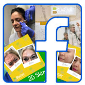 bellair laser clinic on facebook